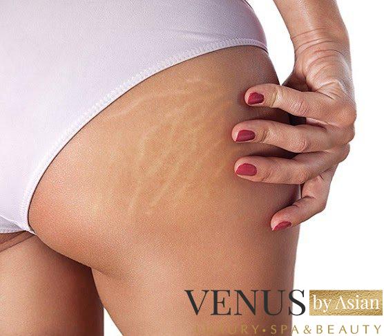 Được  chồng  yêu  thương  hơn cũng  nhờ  điều trị rạn da mông thành công tại  Venus by Asian